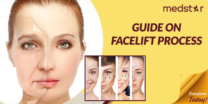 Guide on Facelift Process – How Does it Work?
