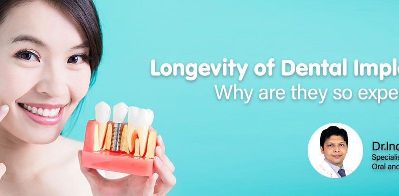Longevity of Dental Implants and why are they so expensive?