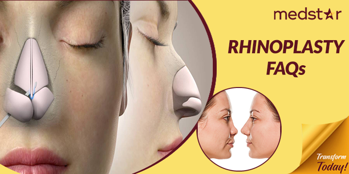 Rhinoplasty Questions Frequently Asked to Dubai Surgeons