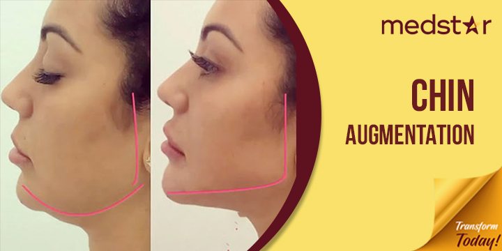 Look And Feel Beautiful With Chin Augmentation
